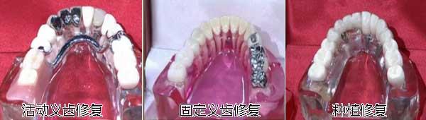 牙齿三种修复方法效果图
