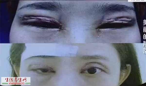 (失败的双眼皮手术)-割双眼皮整形手术没有传闻的那么 微创图片