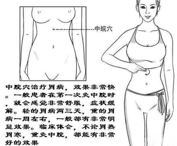 中脘穴治疗胃病
