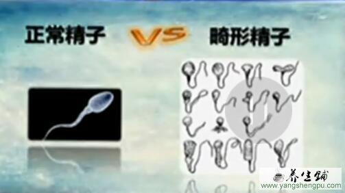 正常精子与异常精子对比