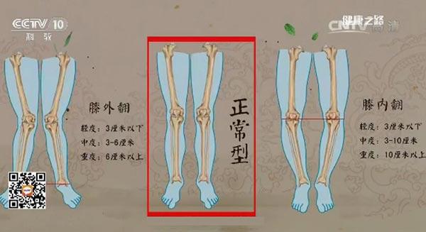 O型腿与X型腿的判断